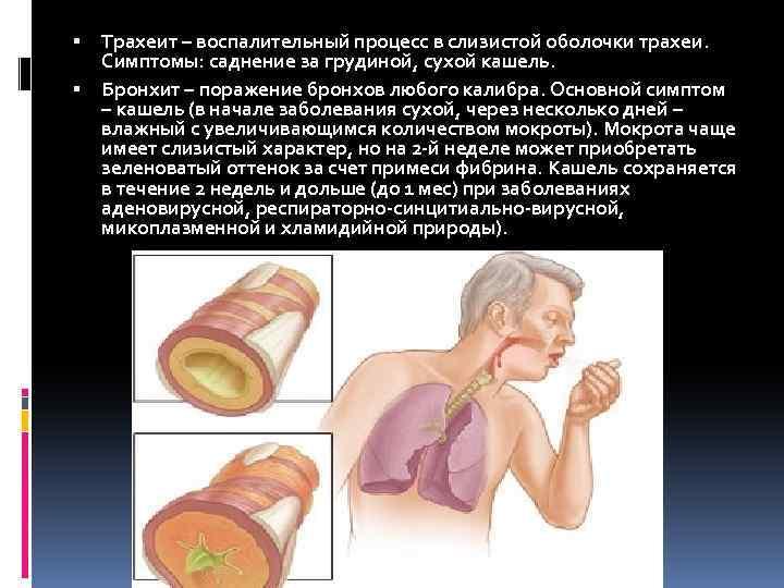 трахея симптомы заболевания