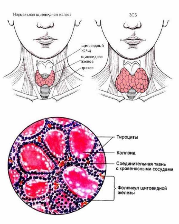 коллоидные кисты щитовидной железы
