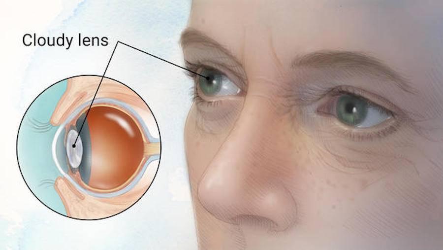Искусственный хрусталик глаза: виды и срок службы импортных и отечественных хрусталиков