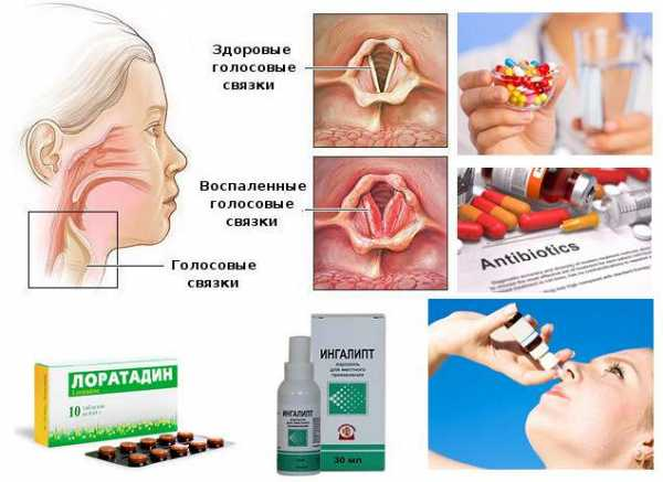 как лечить отек горла