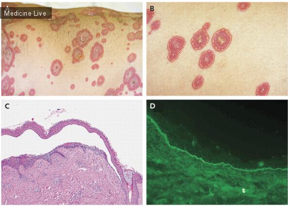 Буллезный дерматит: фото, симптомы, лечение