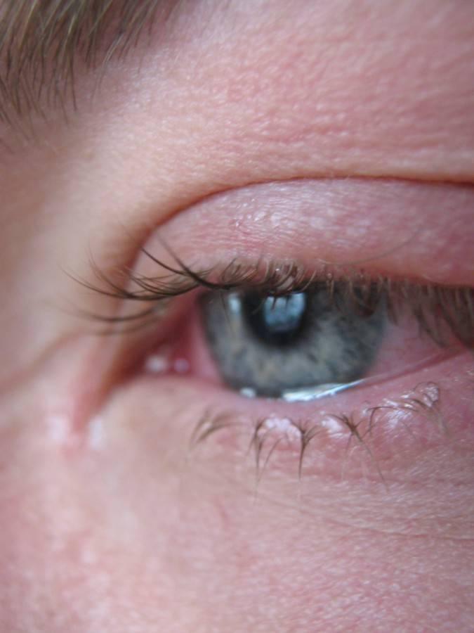 Простуда под глазом как лечить