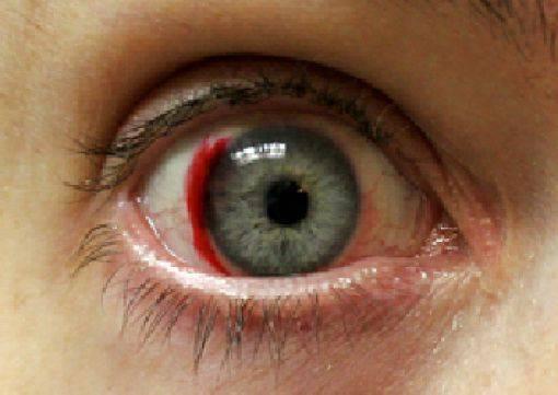 может ли линза уйти за глазное яблоко