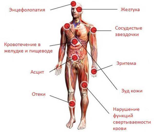 симптомы при гепатите с у женщин