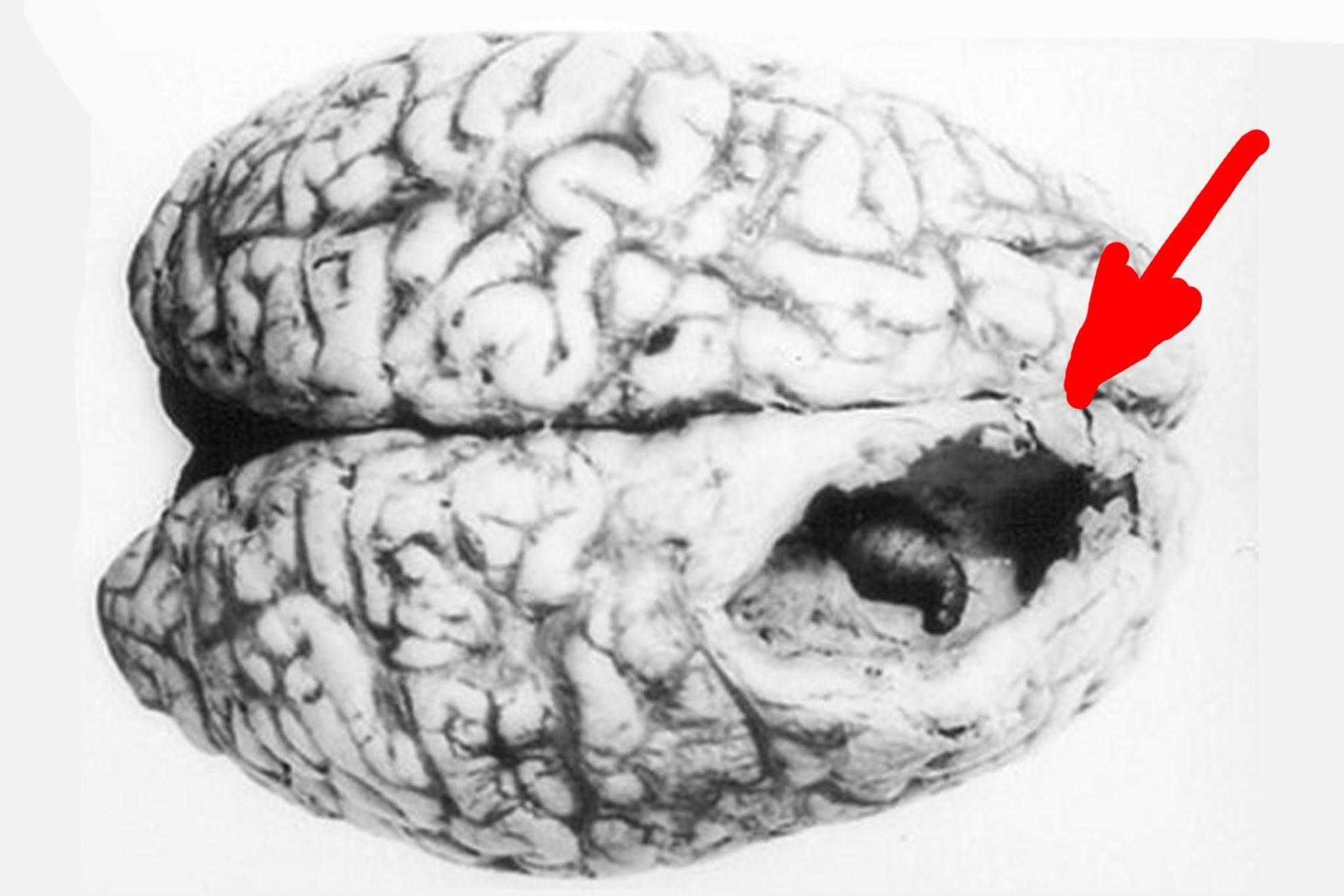 Как паразиты попадают в мозг человека