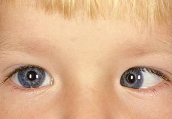 Косоглазие, или страбизм – виды и основные симптомы, причины косоглазия