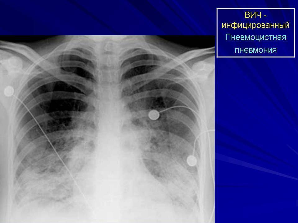 Пневмоцистная пневмония (пцп) у вич инфицированных людей