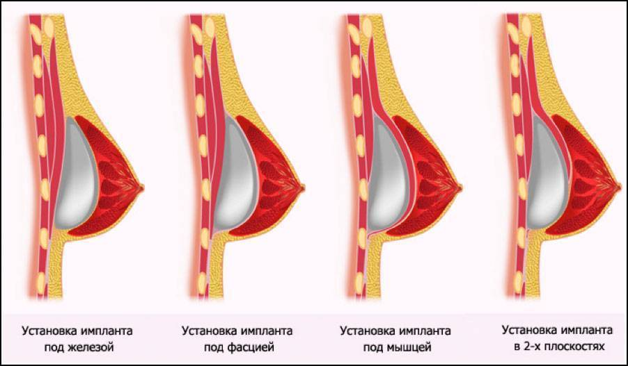 Набухла грудь: причины, признаки и способы лечения