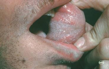 Лечение и профилактика псориаза на головке у мужчин