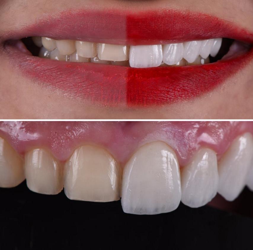 Реставрация постоянных зубов в стоматологии «президент»