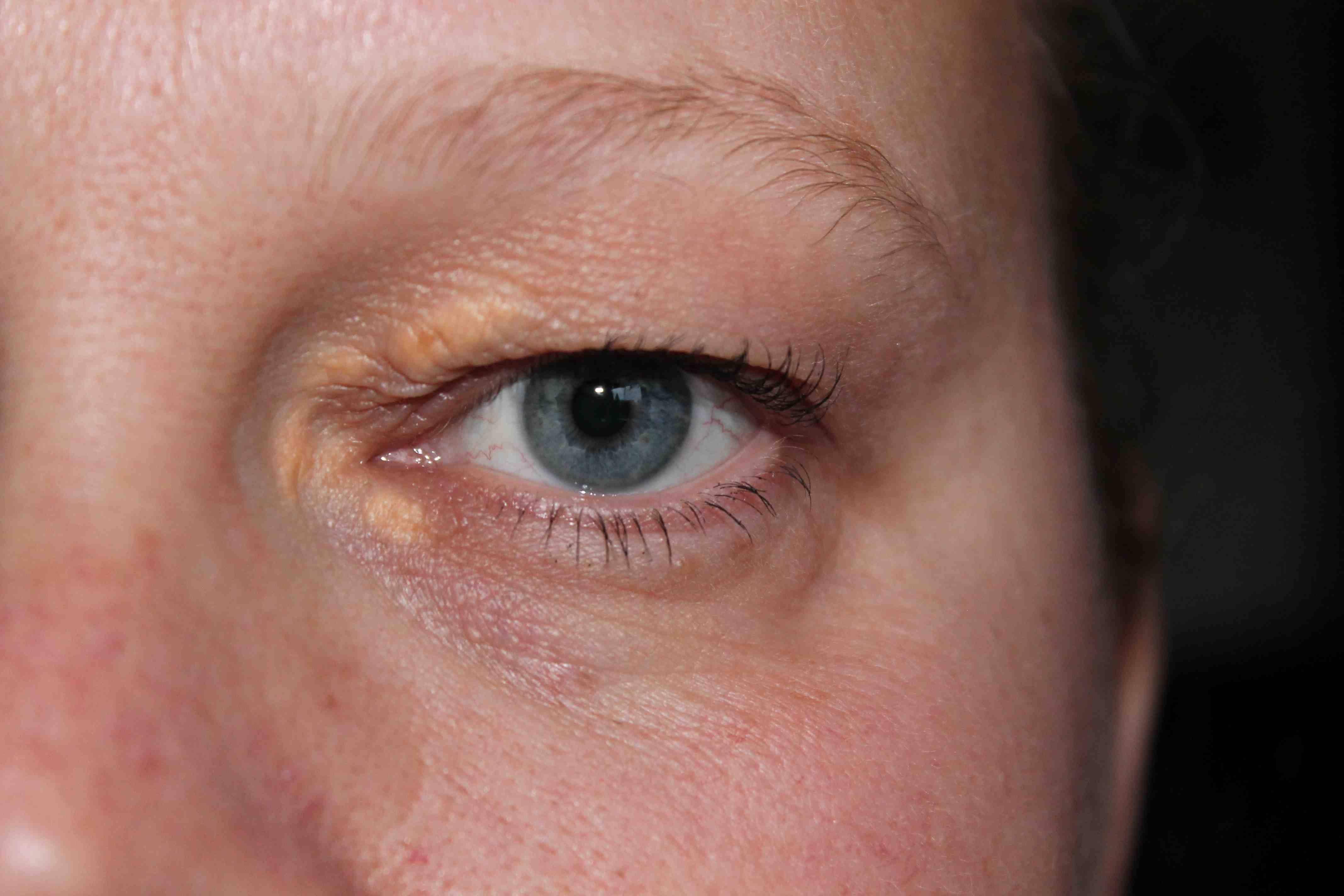 Как убрать холестериновые бляшки под глазами, на веках: лечение и удаление