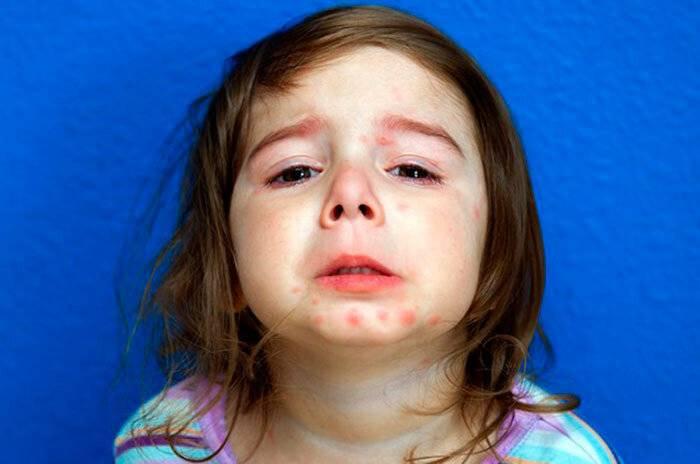 Псориаз у детей: как лечить псориаз у ребенка: описание болезни и фото