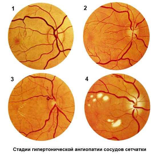 Ангиопатия сетчатки
