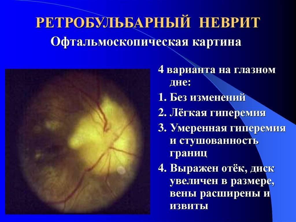 неврит глазного нерва симптомы