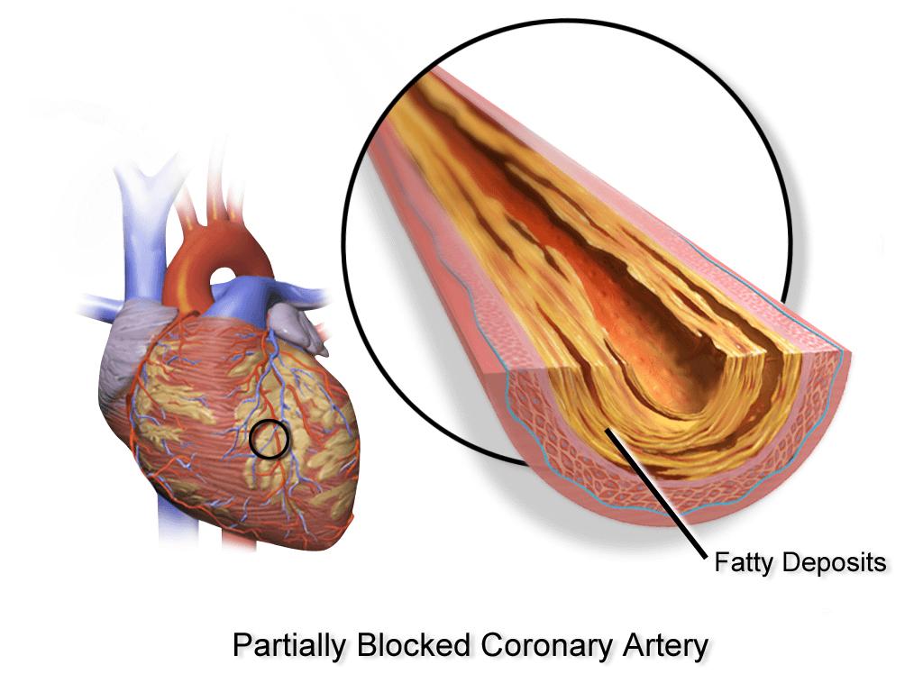 Начальные признаки атеросклероза аорты
