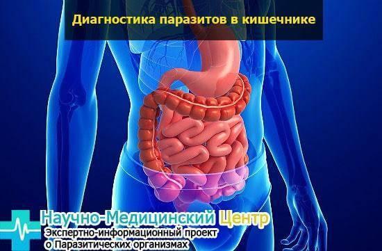 Паразиты в кишечнике человека - виды простейших, симптомы и лечение