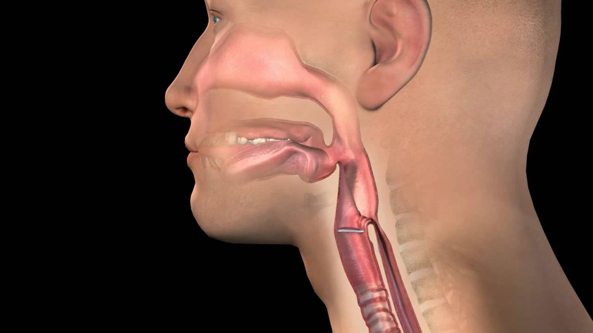 непроходимость пищи в горле