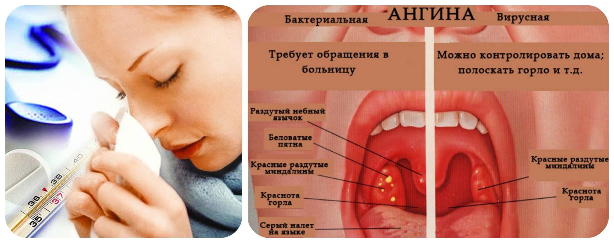 Вирусная ангина: причины, симптомы, лечение + фото