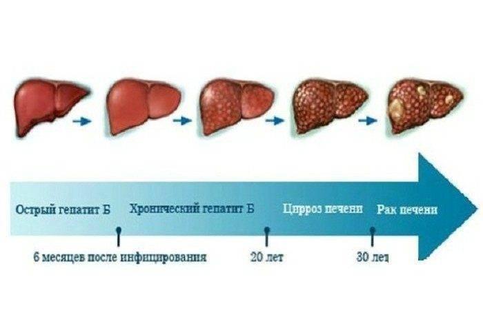 Что такое гепатиты в и с, как они передаются, симптомы и лечение