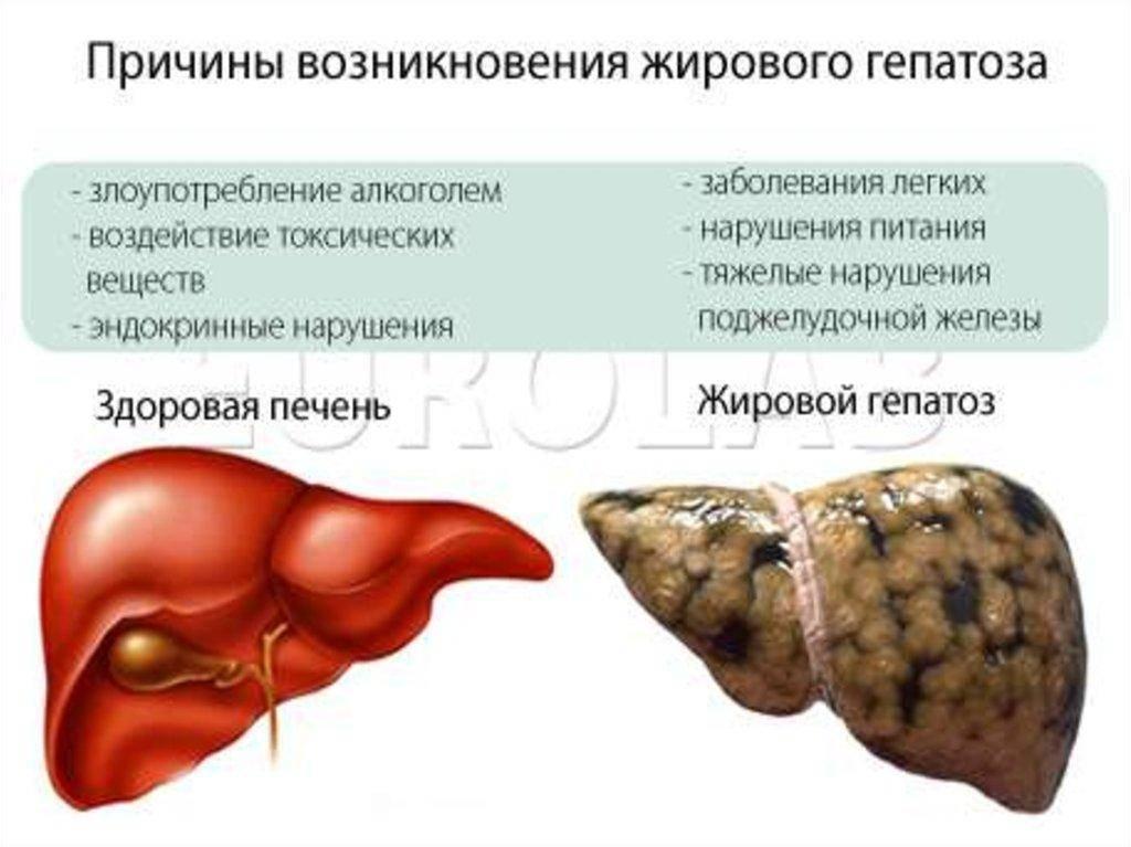Гепатозы.