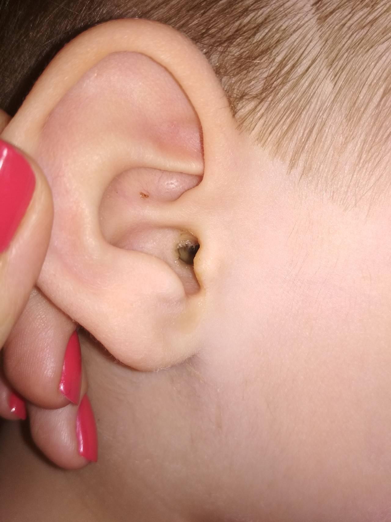 Если у ребенка гноятся ушки. гной в ухе у ребенка