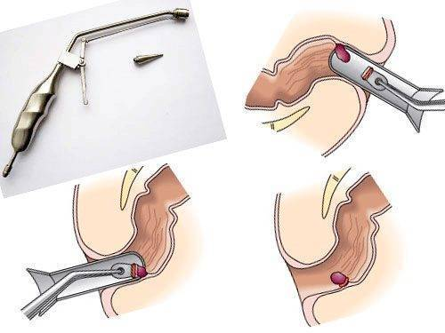 операция на геморрой кольца
