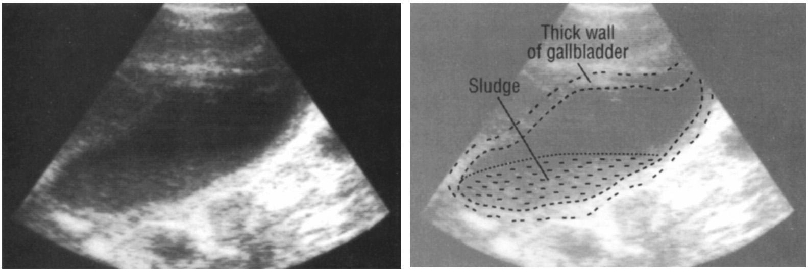 толщина стенки желчного пузыря в норме