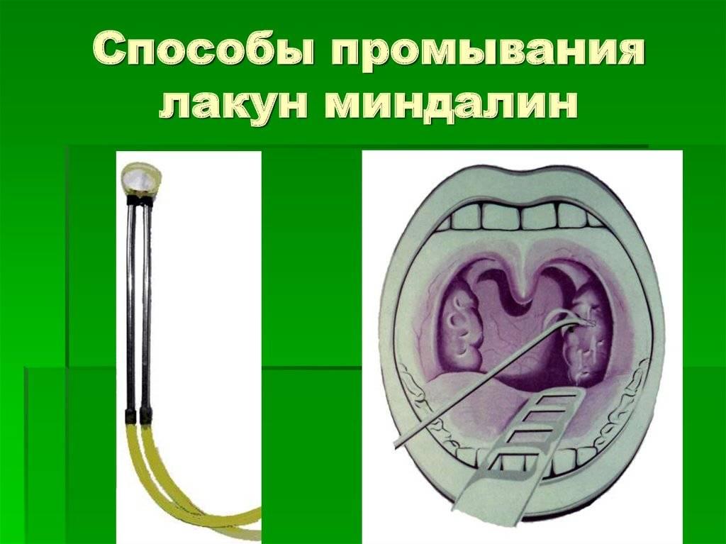 Промывание миндалин: методики, показания, противопоказания