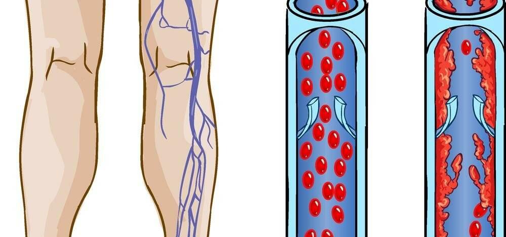 Тромбоз и воспаление геморроидального узла: лечение и удаление