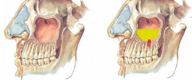 Одонтогенный гайморит: симптомы и лечение — симптомы