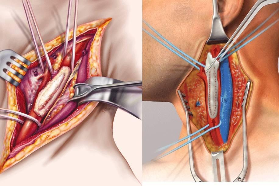 Операции на сонной артерии: при стенозе, бляшке, атеросклерозе