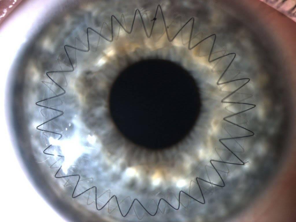 Трансплантация роговицы глаза: операция, отзывы, клиники, цены
