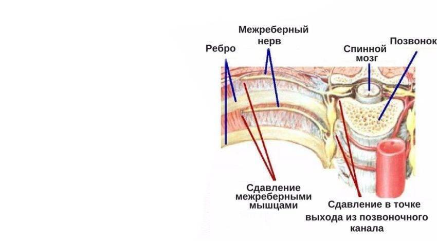 Температура 37 при межреберной невралгии