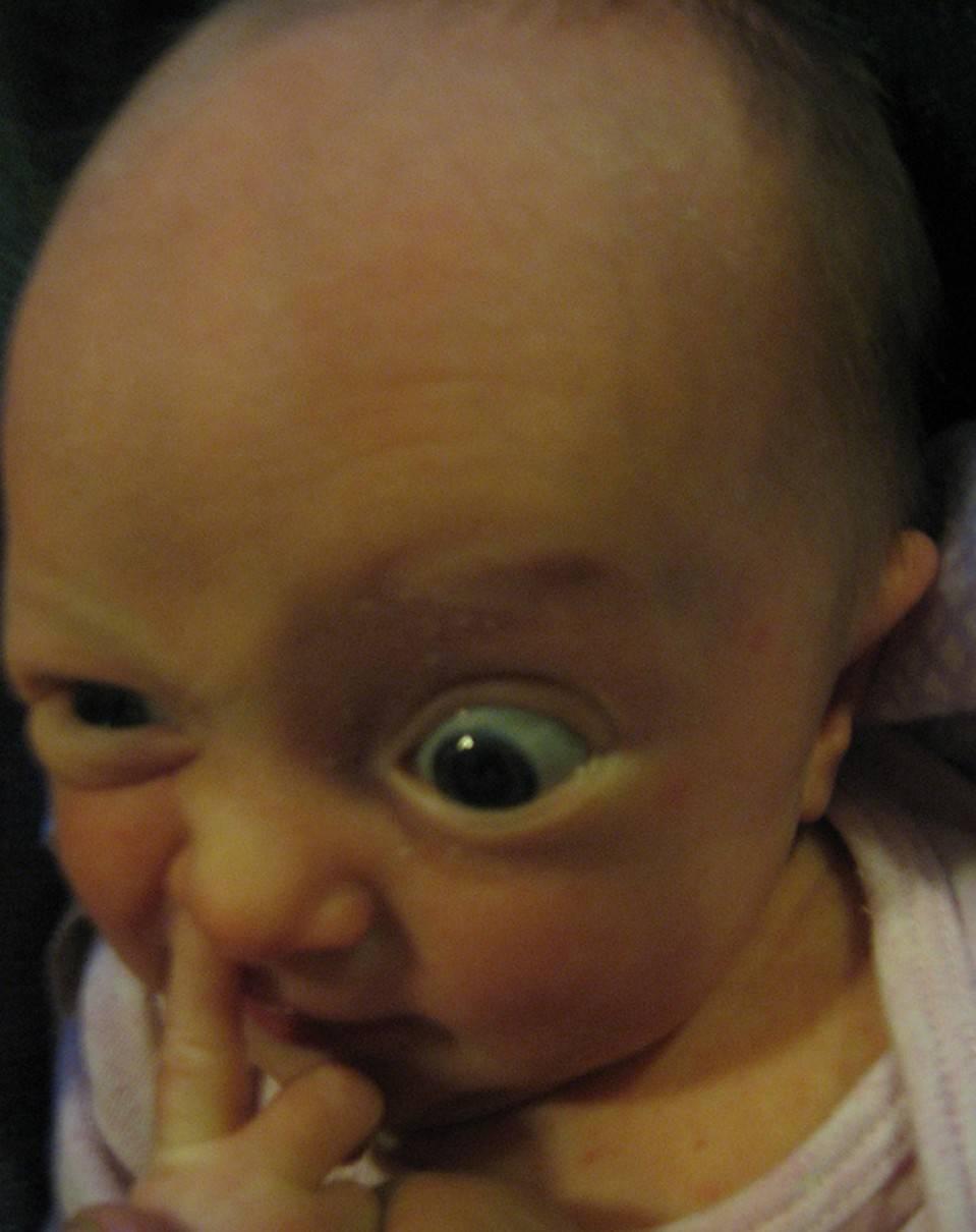 Про козявки у грудничков... - как избавиться от козявок в носу - запись пользователя марина (puzik-karapyzik) в дневнике - babyblog.ru