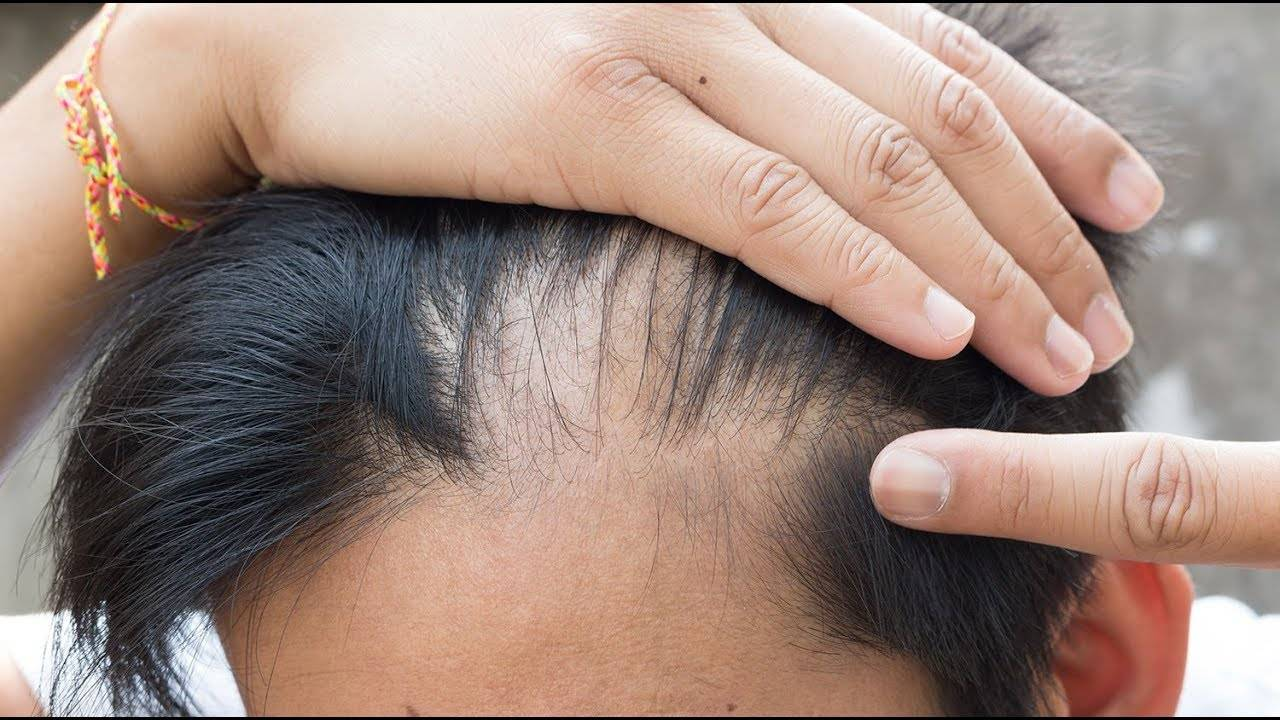 выпадение волос при псориазе