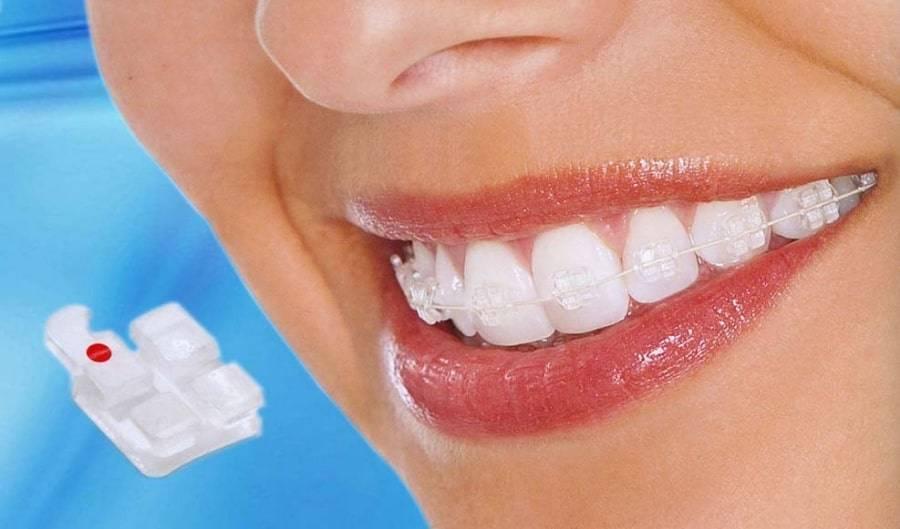 портятся ли зубы от брекетов
