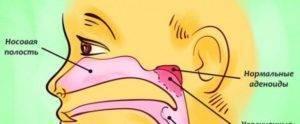 Как избавиться от постоянной заложенности носа