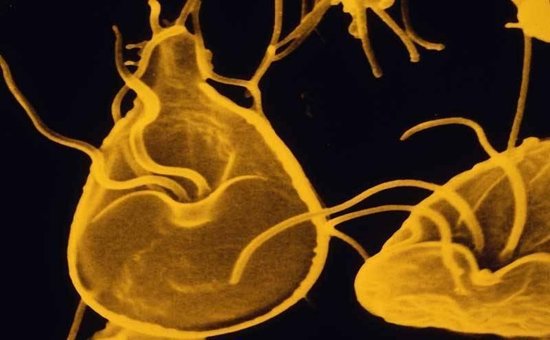 Лямблиоз. причины, симптомы, современная диагностика, эффективное лечение болезни. :: polismed.com
