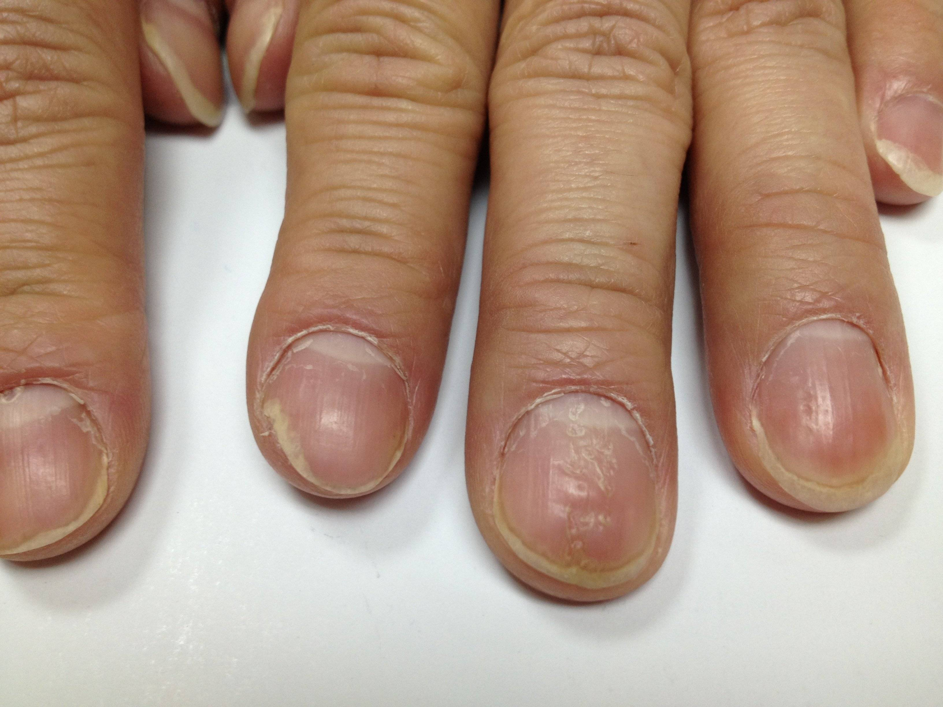 Проверенные методы медикаментозного лечения псориаза ногтей пальцев рук