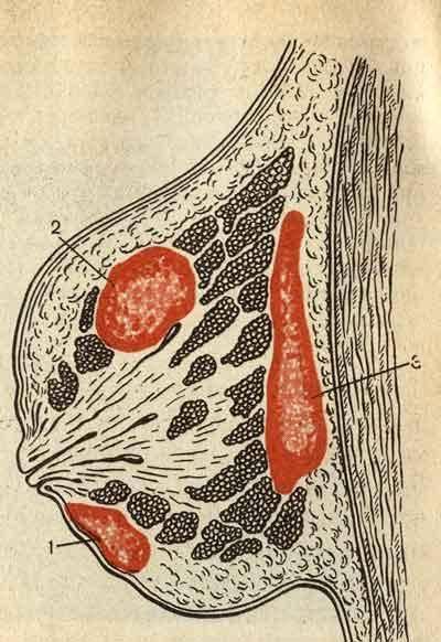Мастит - болезнь кормящих мам
