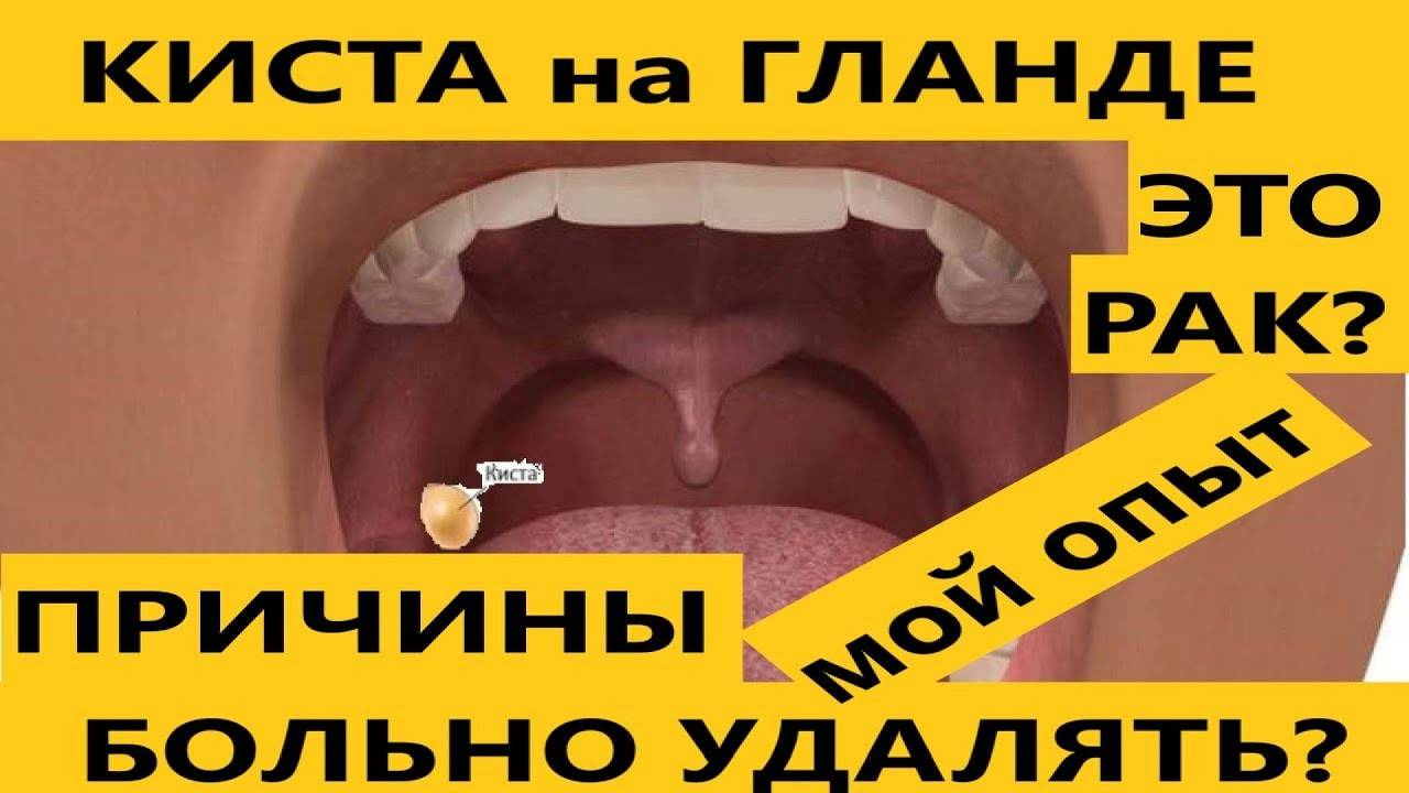 киста миндалины причины