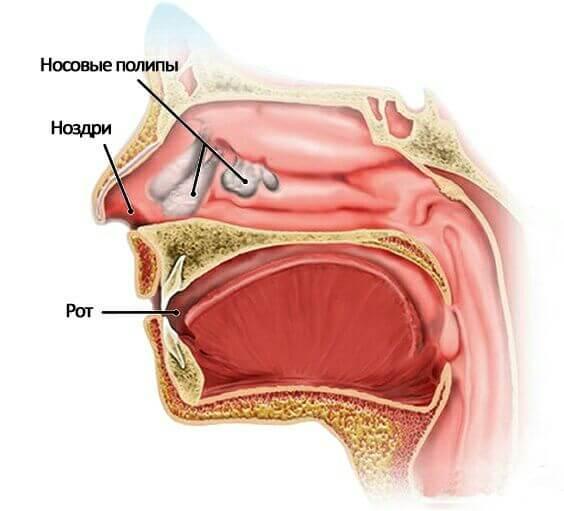 полипозный риносинусит лечение