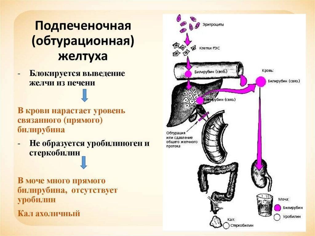 патологическая желтуха новорожденных