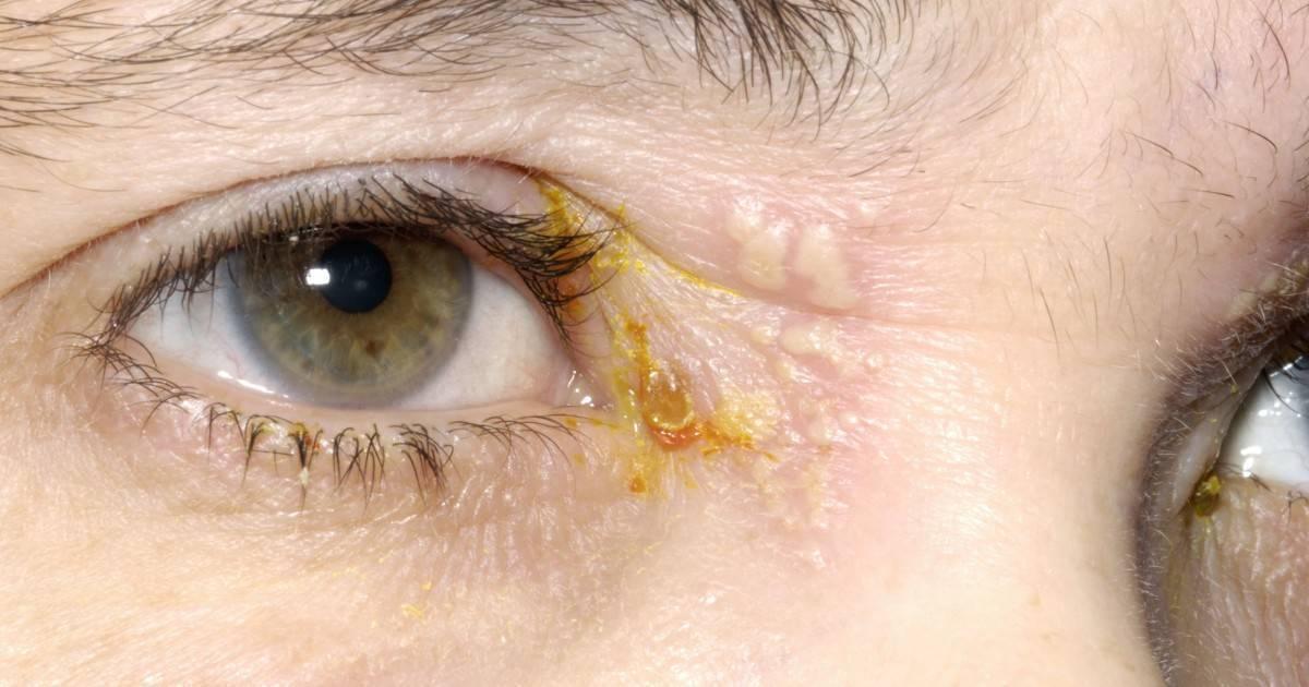 грибковые заболевания глаз лечение