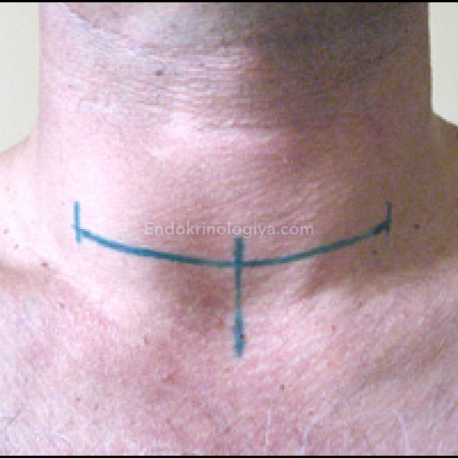 Удаление щитовидной железы у женщин: последствия, осложнения и отзывы