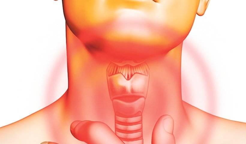 как вылечить рак горла
