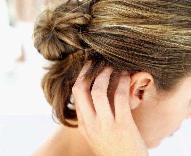 Почему появляется герпес на шее и как его лечить?