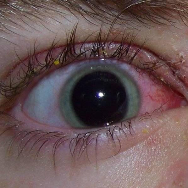 Ушиб глаза: это очень опасная травма! как лечить ушиб глаза, какие симптомы показывают, что нужна помощь врача?