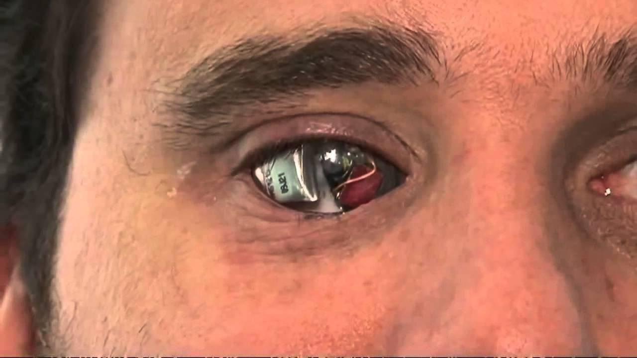 Совместимы ли они между собой: можно ли капать тауфон на линзы или другие глазные капли?