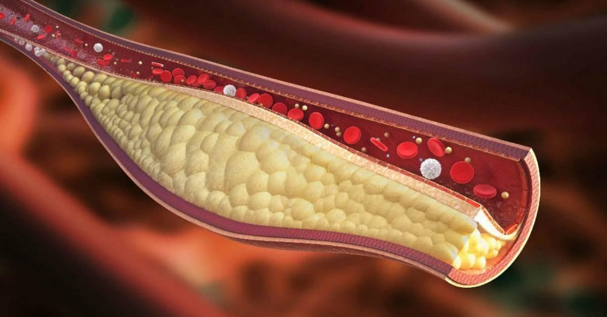 холестериновые бляшки на веках
